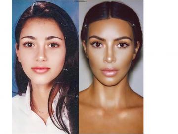 El antes y después de Kim que deja demostrado todos sus 'retoques faciales'