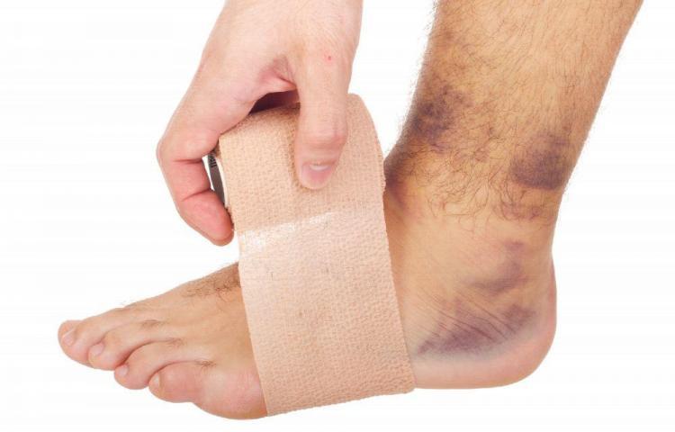¿Cómo curar un esguince de tobillo?