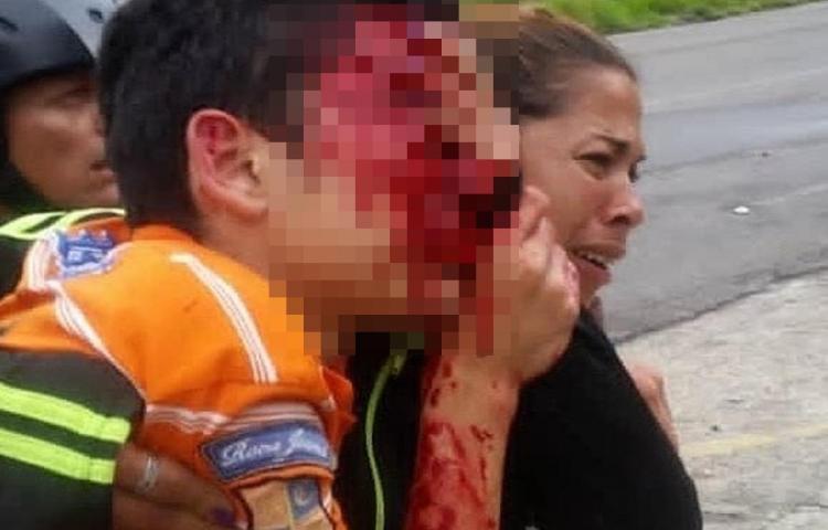 Detenidos policías venezolanos tras herir en protesta a joven y dejarlo ciego