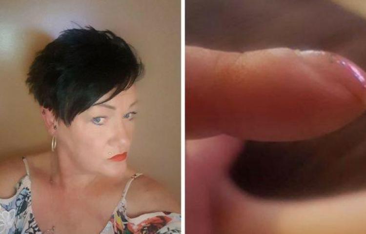 Advertencia se volvió viral al descubrir que las uñas curvas son señal de cáncer