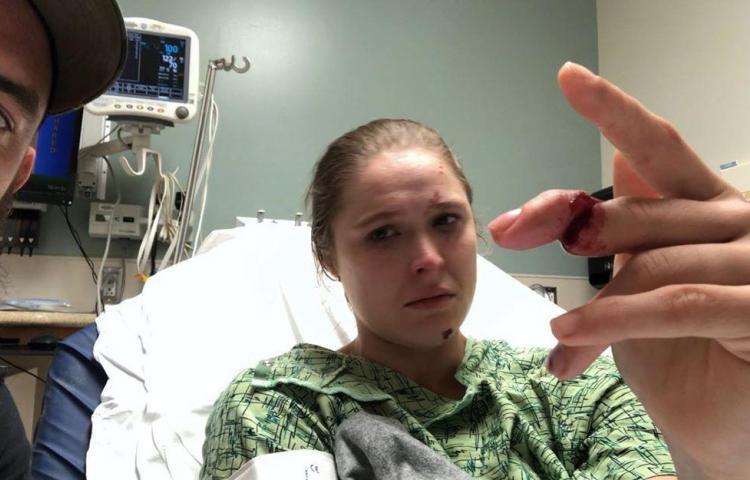 Exluchadora Ronda Rousey se parte el dedo y sigue actuando