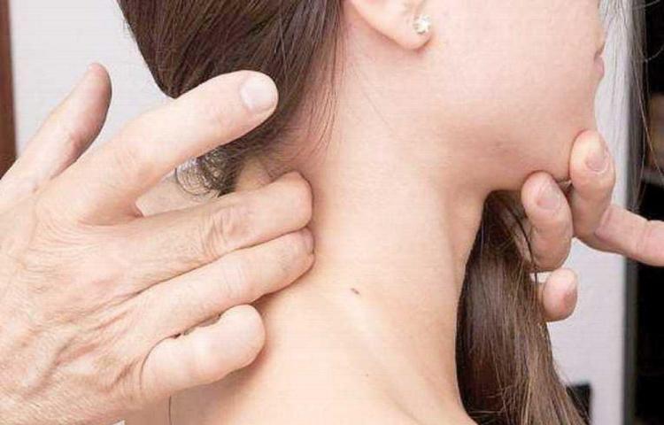 Cáncer de cabeza y cuello se diagnostica en fase avanzada