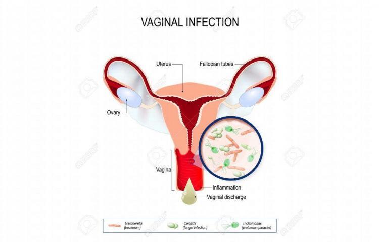 ¡Detecta a tiempo una infección!