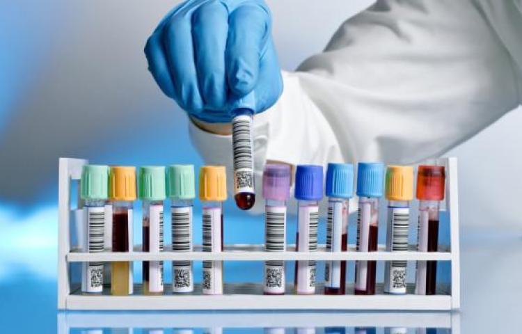Más de 2.8 millones de pruebas de laboratorio