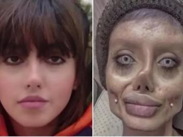 Iraní que se operó 50 veces para parecerse a Angelina Jolie fue arrestada