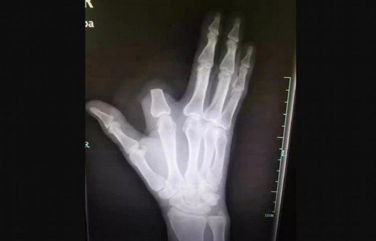 Lo mordió una serpiente y se amputó el dedo