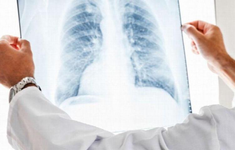 A cuidarse del cáncer de pulmón, es un asesino silencioso