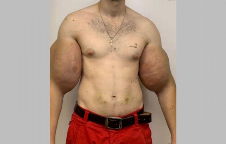 Le quitan los biceps a 'Popeye'