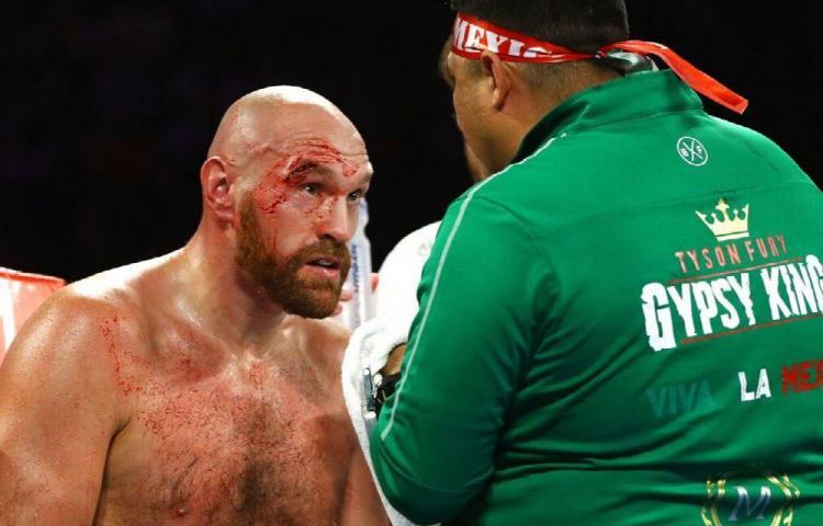 Tyson Fury quiere retirarse a los 40 años