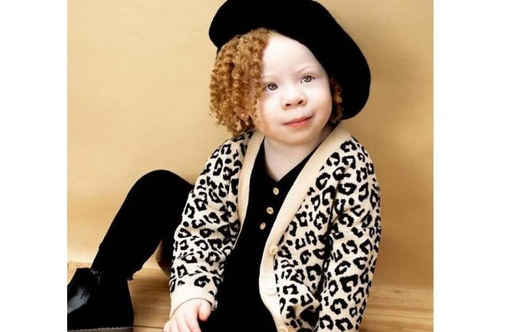 Hoy es el Día Internacional sobre la Sensibilización del Albinismo