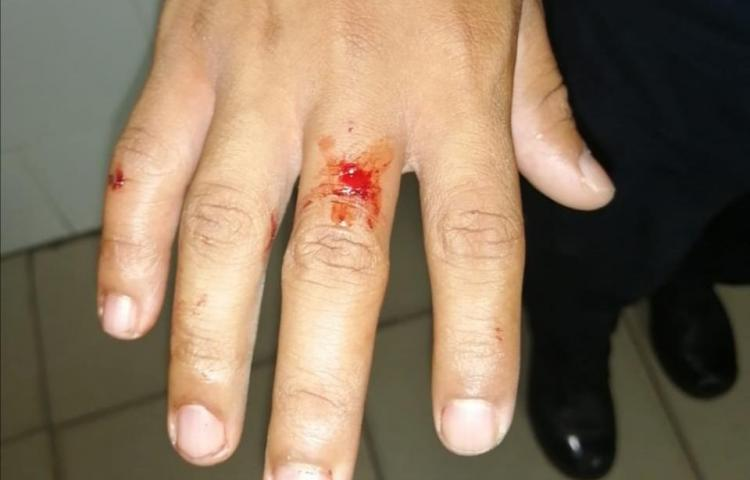 Hombre le quita la pistola taser a un agente policial