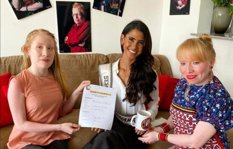Señorita Panamá velará por la atención y el cuidado de los albinos en Guna Yala